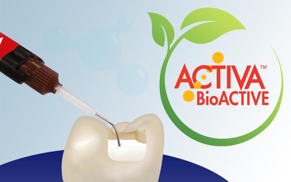 Titelbild Pulpdent Activa BioActive Blogartikel